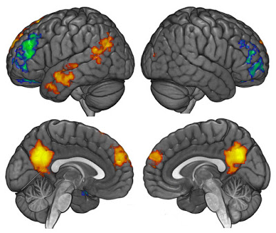 fig-2-edit_brain-activation-during-challenges-to-political-vs-non-political-beliefs